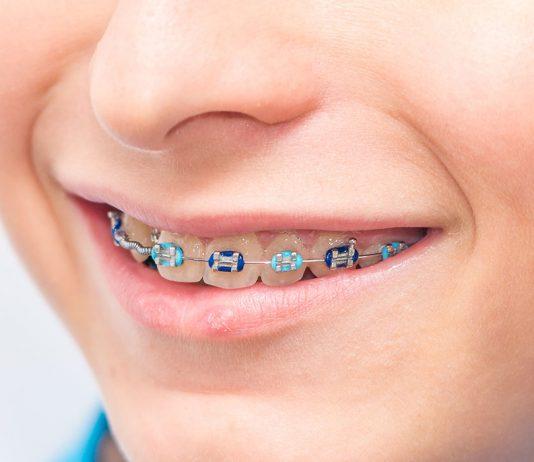 Braces for Kids Teeth